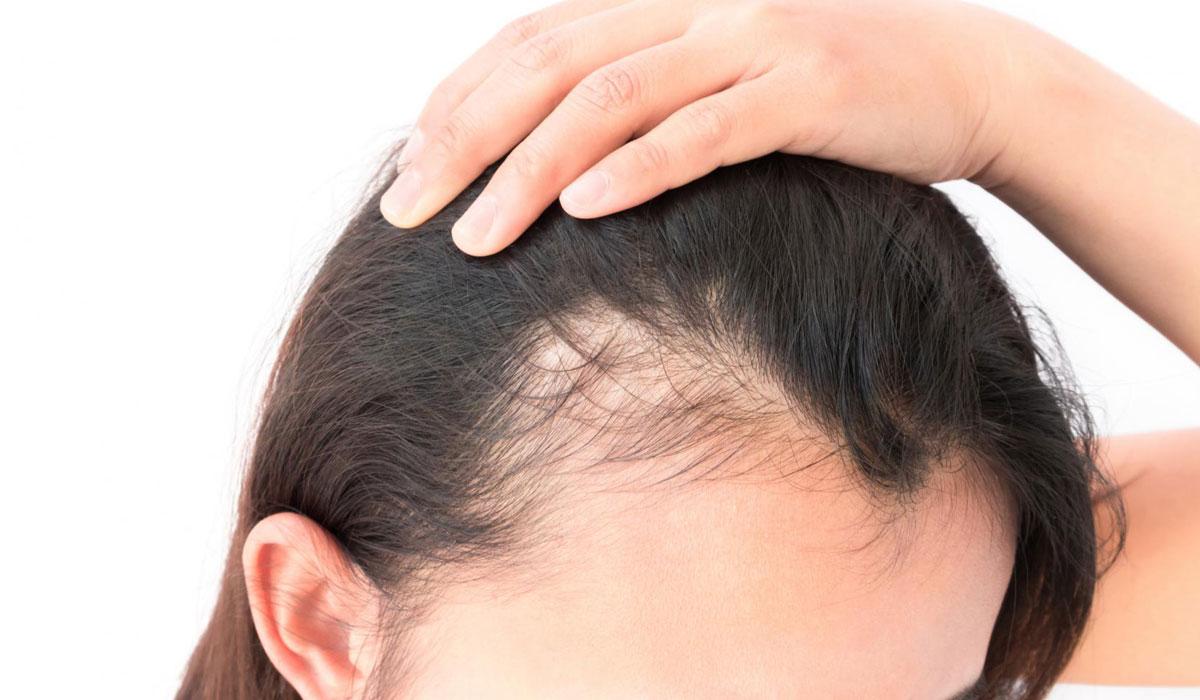 صورة علاج سقوط الشعر , اهم طرق معالجه الشعر