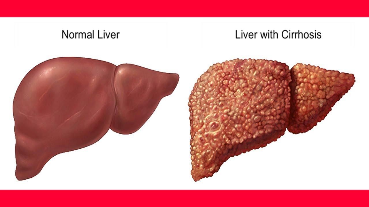 صور علاج تليف الكبد , علاج فيرس الالتهاب الكبدي