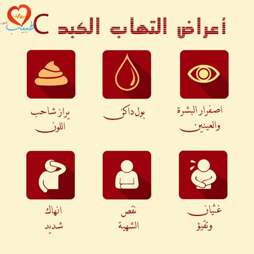 صور اعراض مرض الكبد , الاصابة بمرض الكبد