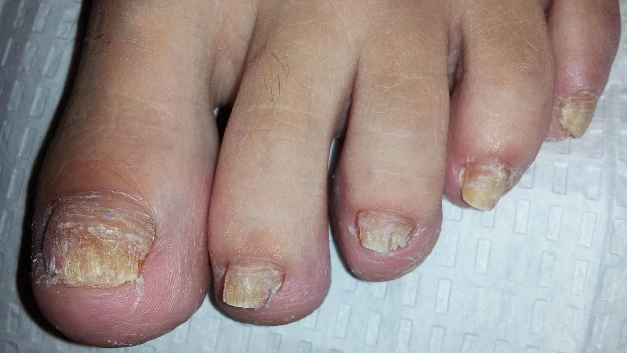 صورة امراض الاظافر , تعرف على الامراض التي تصيب الاظافر
