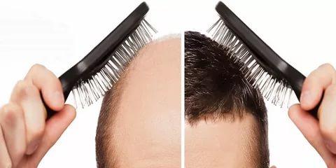 صورة علاج لتساقط الشعر , اكثر طرق العلاج الفعالة لتساقط الشعر