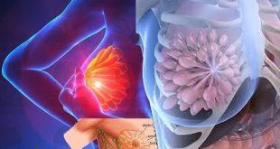 صور اعراض سرطان الثدي , اشهر الاعراض الخطيرة لسرطان الثدى