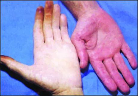صورة علاج فقر الدم , تعرف على العلاج الطبى والمنزلى للانيميا