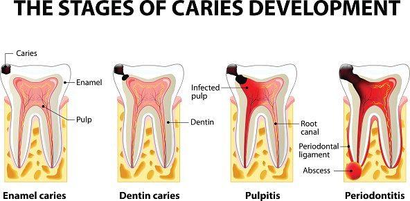 صورة علاج وجع الاسنان , الم الاسنان وكيفية علاجه