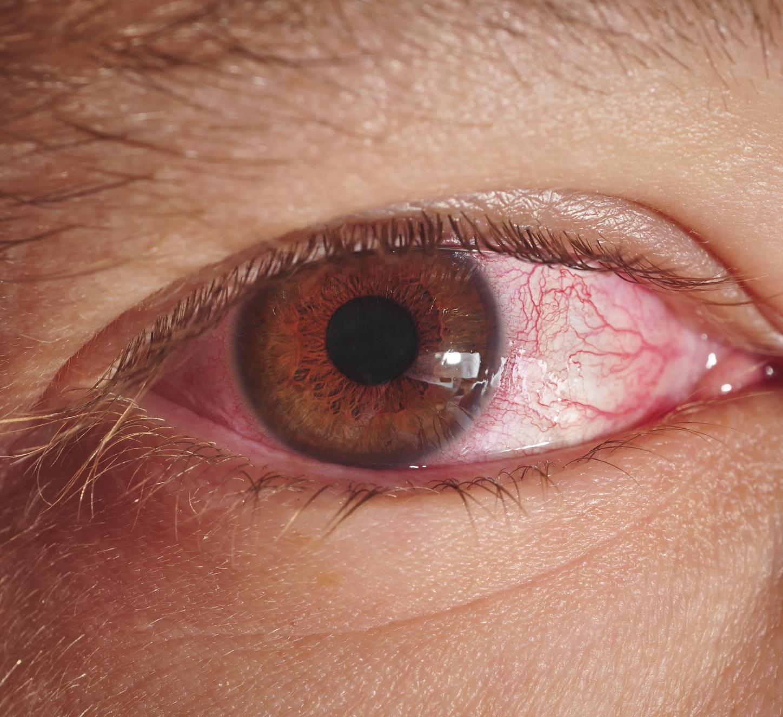 صوره علاج حساسية العين , طرق مقاومه الحساسيه التى تصيب العين