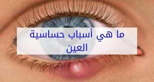 صورة علاج حساسية العين , طرق مقاومه الحساسيه التى تصيب العين 1052 2 310x165