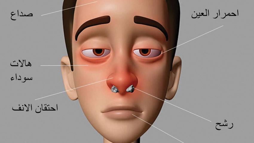 صور علاج حساسية الانف , كيفيه مقاومة حساسية الانف