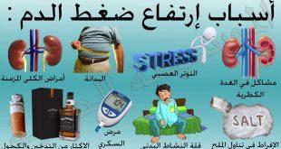 بالصور اسباب ارتفاع ضغط الدم , ما الذى يدفعنا للاصابه بارتفاع ضغط الدم 1137 2 310x165