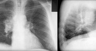صوره اعراض سرطان الرئة , كيف اعلم اننى مصاب بسرطان رئه