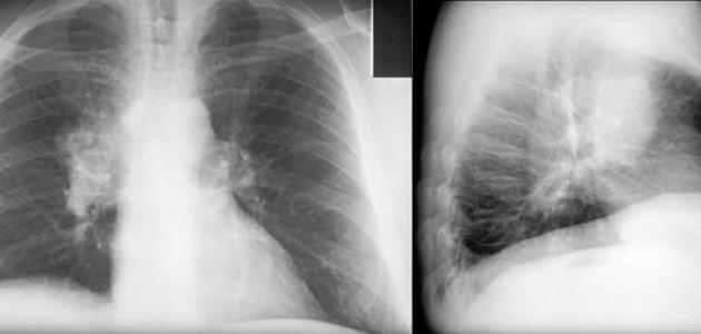 بالصور اعراض سرطان الرئة , كيف اعلم اننى مصاب بسرطان رئه 1196