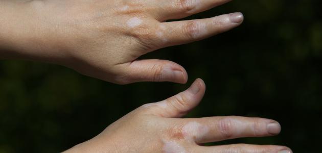 بالصور علاج البرص , طرق العلاج من الامراض الجلديه 1541 1