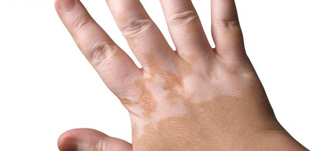 بالصور علاج البرص , طرق العلاج من الامراض الجلديه 1541