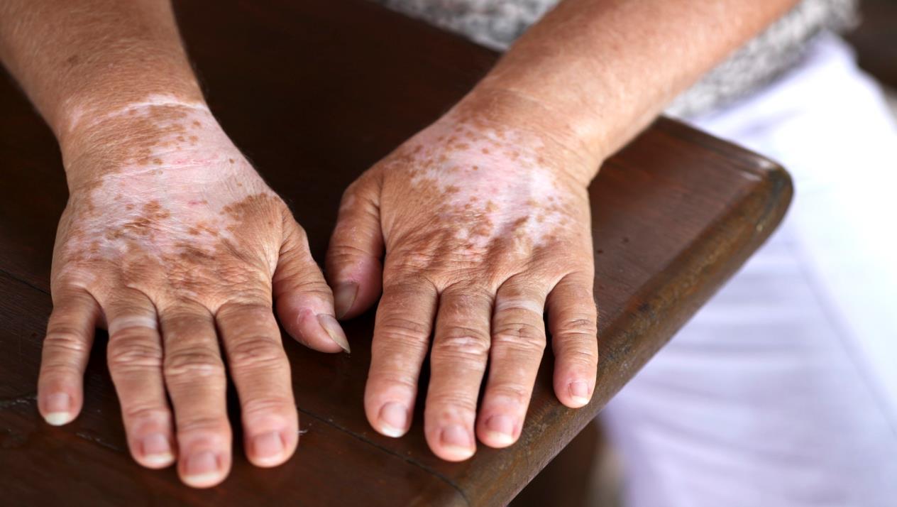 صورة علاج البهاق بالاعشاب , علاج البهاق با الاعشاب من اجمل الطرق