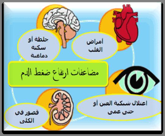 صور علاج ارتفاع ضغط الدم , اسباب وطرق علاج ارتفاع ضغط الدم