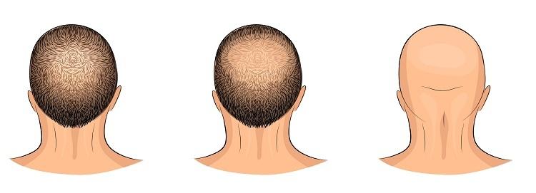 صورة علاج تساقط الشعر للرجال , طريقة علاج تساقط الشعر للرجال