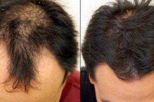 بالصور علاج تساقط الشعر للرجال , طريقة علاج تساقط الشعر للرجال 3178 2 310x205