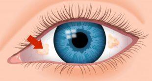صور تكوين العين , مما تتكون العين