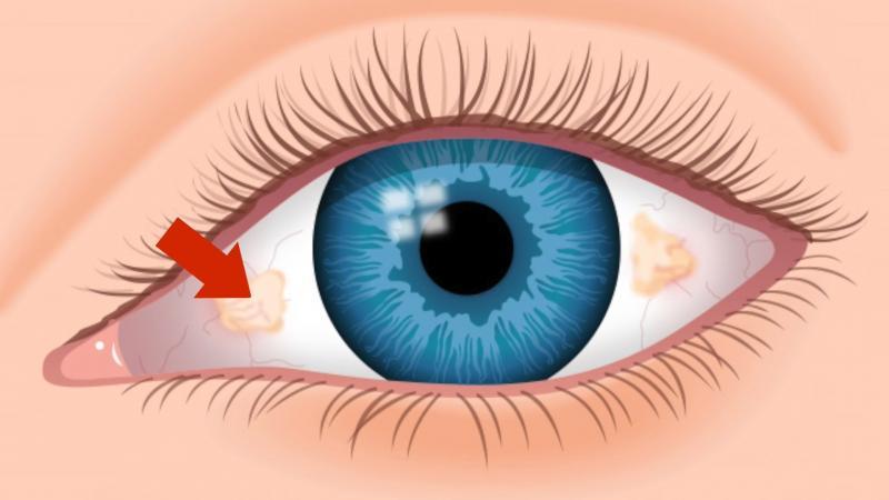 صورة تكوين العين , مما تتكون العين