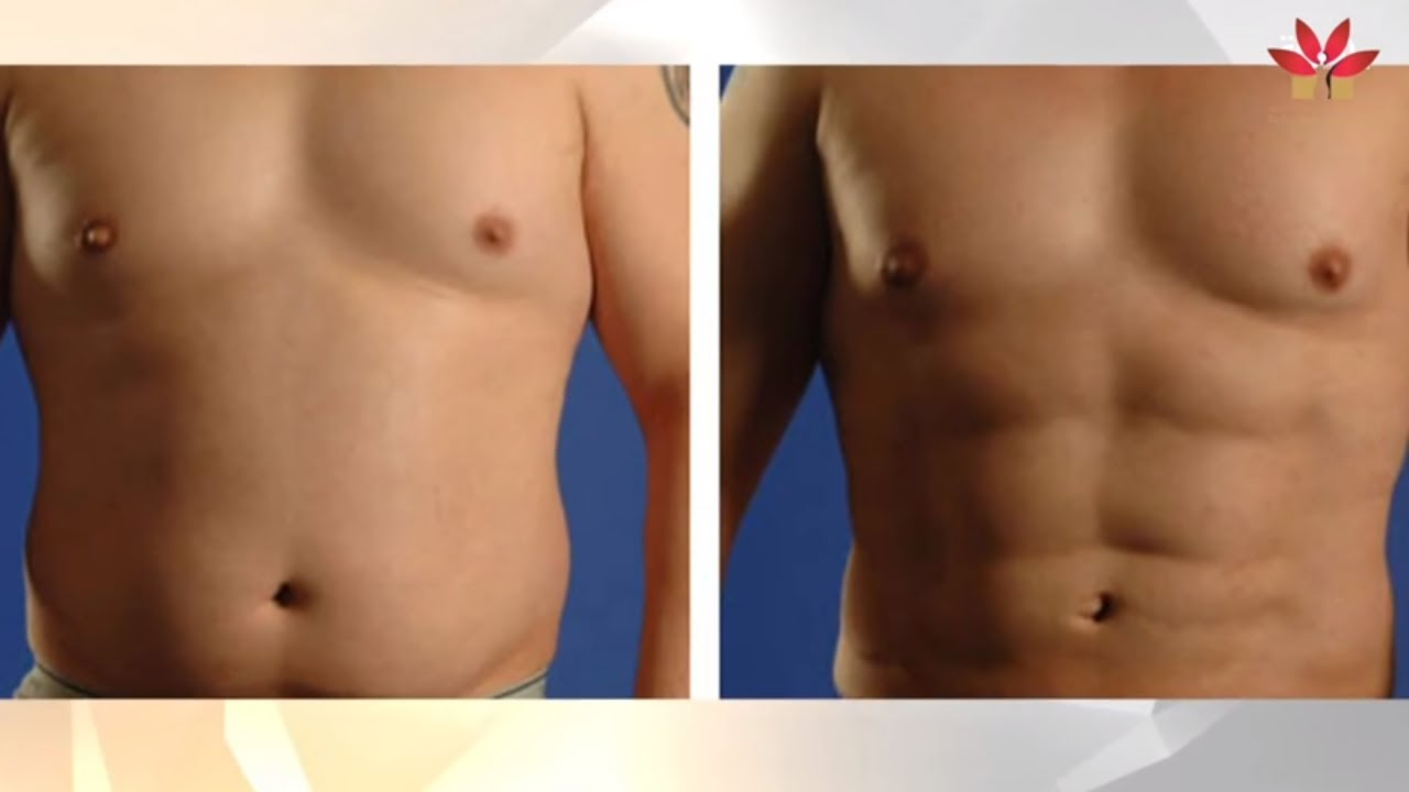 بالصور عملية نحت الجسم , تعرف على فوائد عمليات نحت الجسد 3870 2