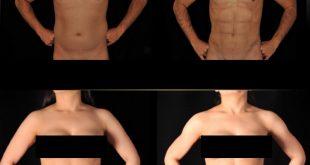 صوره عملية نحت الجسم , تعرف على فوائد عمليات نحت الجسد