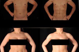 صورة عملية نحت الجسم , تعرف على فوائد عمليات نحت الجسد