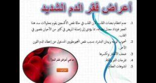 صورة اعراض فقر الدم , اسباب فقر الدم وعلاجه