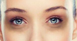صورة الهالات السوداء تحت العين , اسباب الهالات السوداء وعلاجها