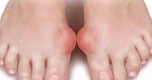 صوره ما هو مرض النقرس , مرض النقرس واعراضه