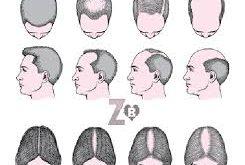 بالصور مرض الثعلبة , ماذا يصيب مرض الثعلبة في جسم الانسان 1984 3 245x165