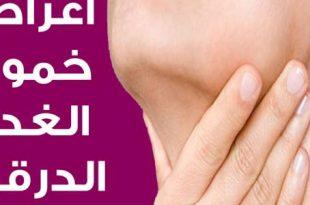 صورة مرض الغدة الدرقية , ما هى اعراض الغدة الدرقية وكيف اعالجها