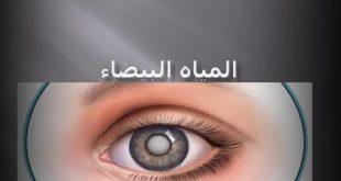 صوره المياه البيضاء , اسباب وطرق علاج المياة البيضاء على العين