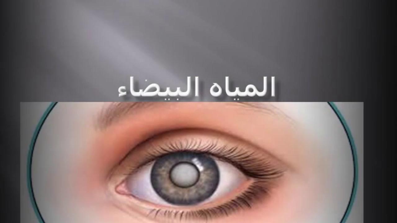 صورة المياه البيضاء , اسباب وطرق علاج المياة البيضاء على العين 2650