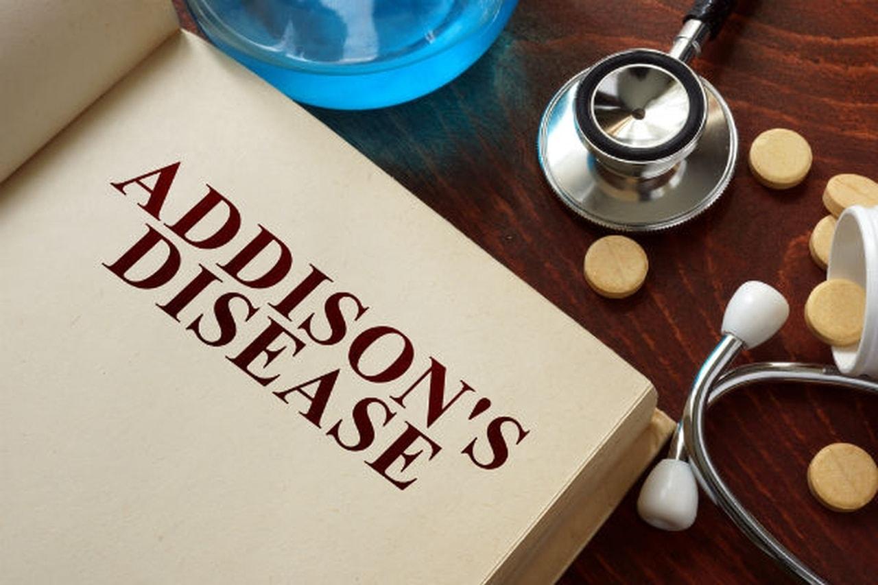 بالصور مرض اديسون , اعراض وعلاج مرض اديسون 2687 2