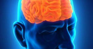 صور اعراض سرطان الدماغ , كيف اعرف اننى اعانى من سرطان الدماغ وما الحل ؟