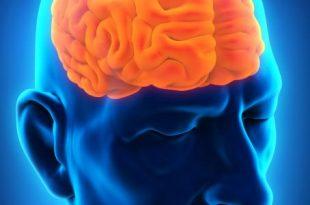 صوره اعراض سرطان الدماغ , كيف اعرف اننى اعانى من سرطان الدماغ وما الحل ؟
