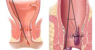 صورة اعراض البواسير , كيف اكتشف اصابتى بالبواسير