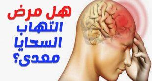 صورة مرض السحايا , اعراض وعلاج مرض السحايا