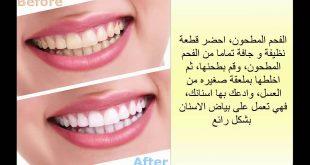 صور كيفية تبييض الاسنان , طرق تبييض الاسنان