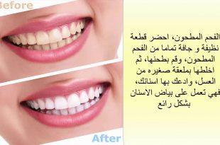 بالصور كيفية تبييض الاسنان , طرق تبييض الاسنان 3060 3 310x205