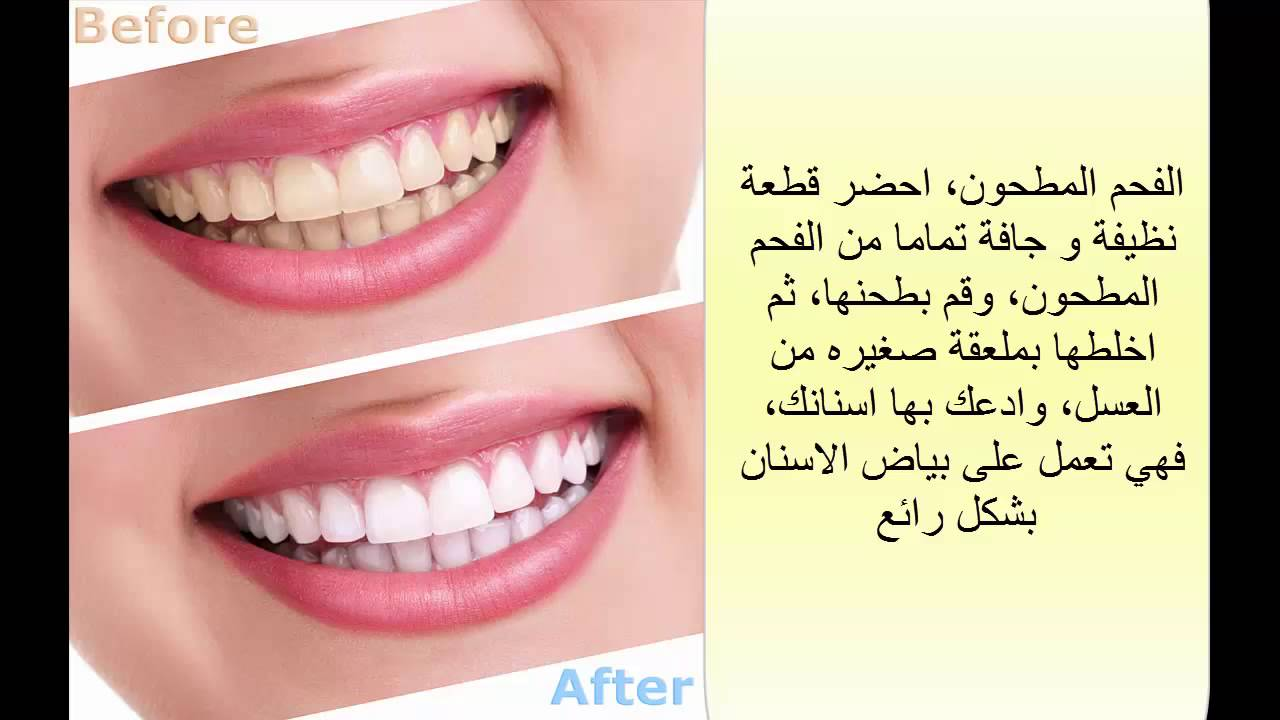 بالصور كيفية تبييض الاسنان , طرق تبييض الاسنان 3060