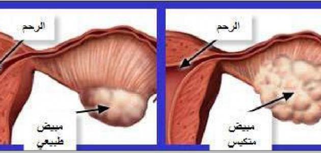 بالصور اعراض تكيس المبايض , اسباب تكيس المبايض وطريقة علاجها 3323