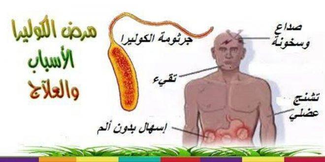 صورة اعراض مرض الكوليرا , تعرف علي مرض الكوليرا