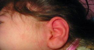 صورة علاج التهاب الاذن , معالجه الاذن والتهاباتها
