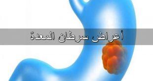 صورة اعراض سرطان المعدة , تعرف علي سرطان المعده