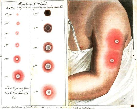 صورة تعرفي معي علي اعراض مرض الجدري , مرض الجدري