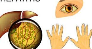 صورة لن تصدق ان تلك اعراض واسباب لاتهاب الكبد , مرض الكبد الوبائي
