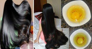 صورة كيف الشعر يطول بسرعة 12538 3 310x165